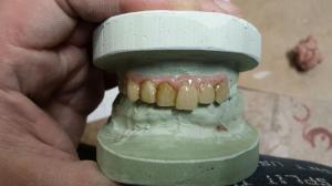 False teeth dental prosthetic