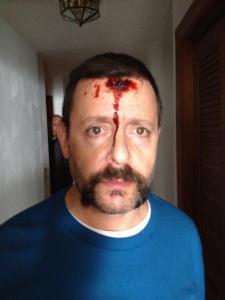 judd nelson head wound